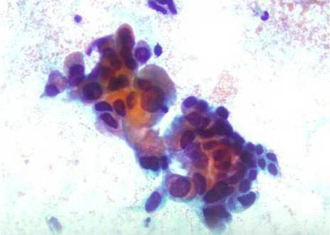 Endocervical Adenocarcinoma. Endocervical cell atypia. The cells show considerable variability of cell sizes.
