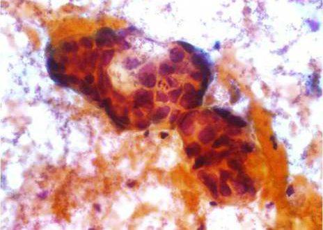 Adenocarcinoma Endocervical. Acúmulo de células endocervicais con marcada atipia