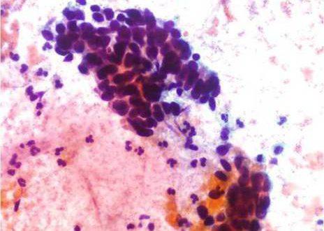 Adenocarcinoma Endocervical. Celulas indiferenciadas sin evidencia de caracteres citoplasmáticos e nucleos hipercromaticos marcadamente anormais.